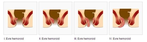 Hemoroid_basur_evreler